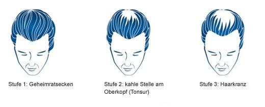 Welche Frisur Bei Tonsur - yskgjt.com