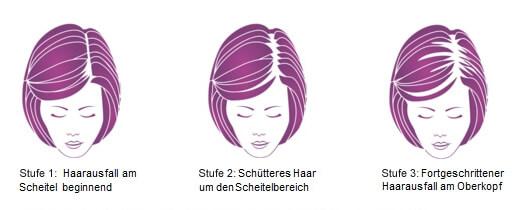 Ludwig-Skala Stadien des Haarausfalls bei Frauen