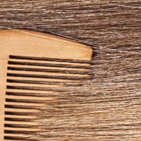 Alles über Haarausfall