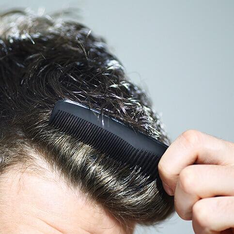 Mittel gegen Haarausfall Männer